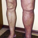 deep-venous-thrombosis-(DVT)