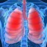 πνευμονες