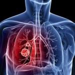πνευμονας καρκ.